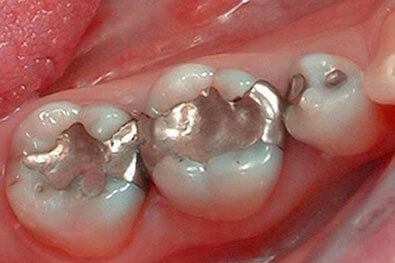 Three teeth with large metal fillings