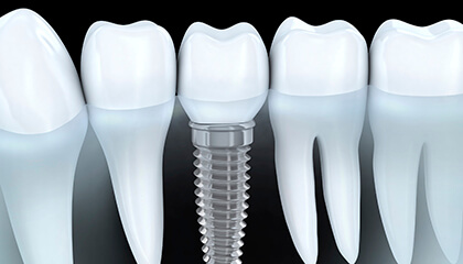 Animation of dental implant supported crown