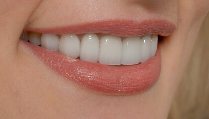 Close view of flawless healthy smile