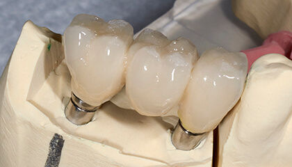 Model of dental implant supported fixed bridge