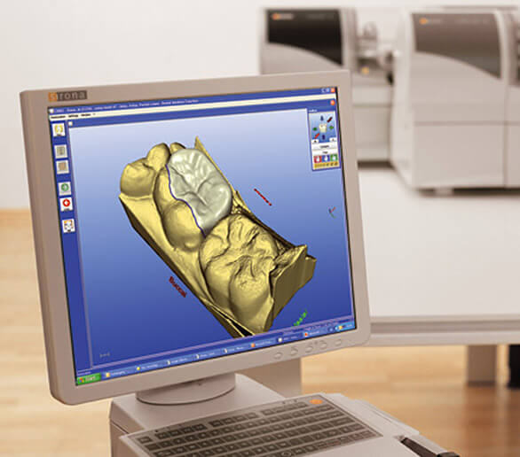 Computer screen with CEREC design