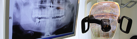 Panoramic dental x-ray on chairside monitor