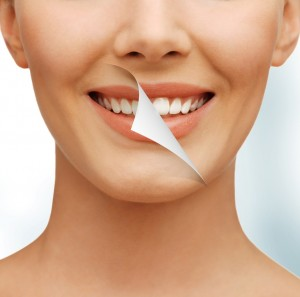 How can a smile makeover in Melbourne change your life for the better?