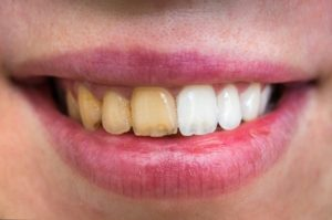 Before and after teeth whitening in Melbourne.