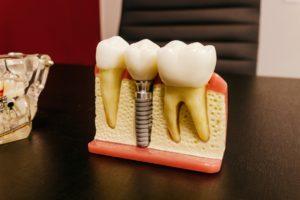 Plastic model used for dental implants